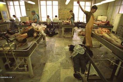 pabrik organ tubuh picture